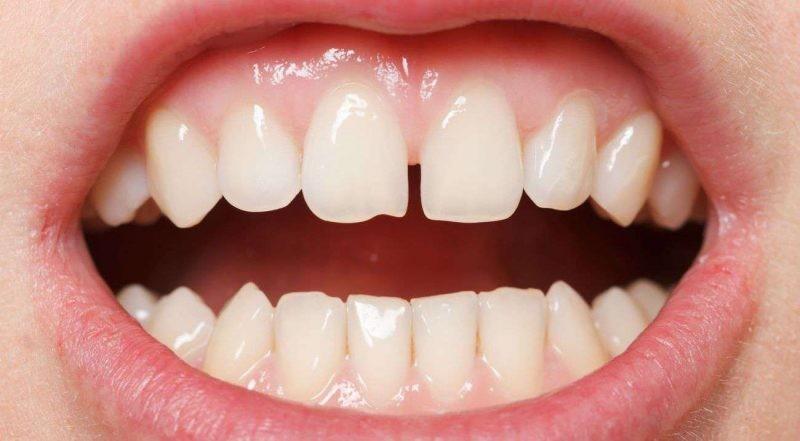 Исправлять ли щербинку между зубами у подростков?