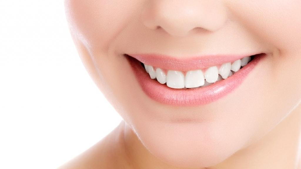 Элайнеры и каппы для выравнивания зубов без брекетов
