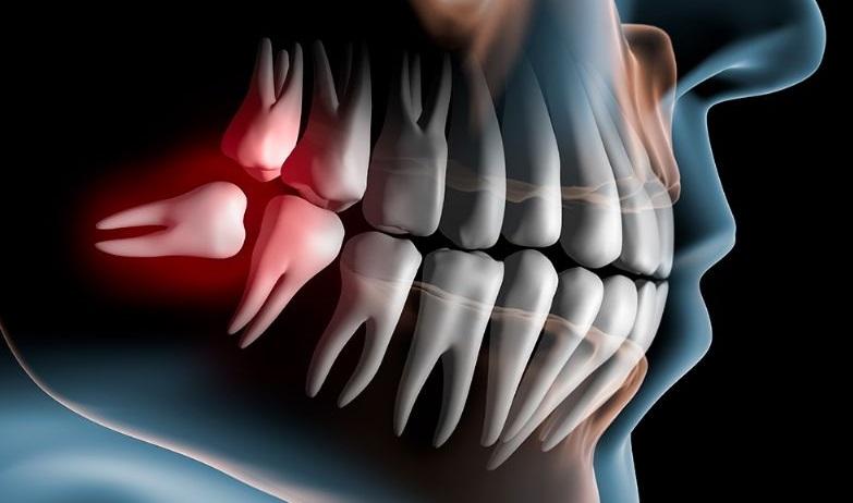 Передвижение зубов при патологиях