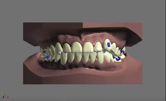 Быстрое выпрямление зубов