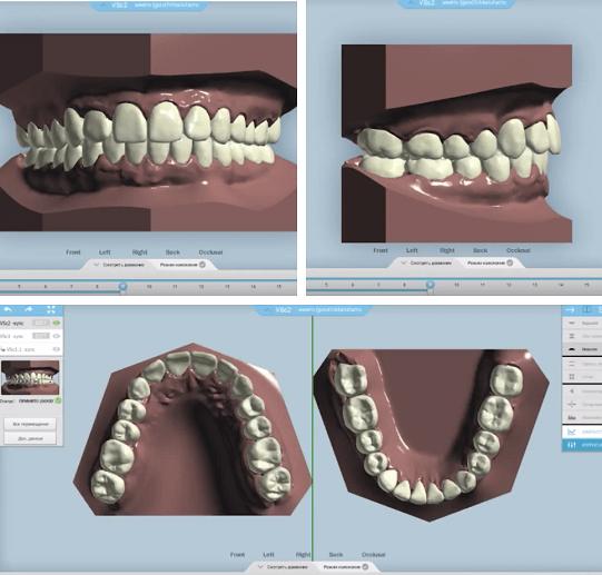 3D визуализация - пациент видит результат лечения еще ДО его начала.png