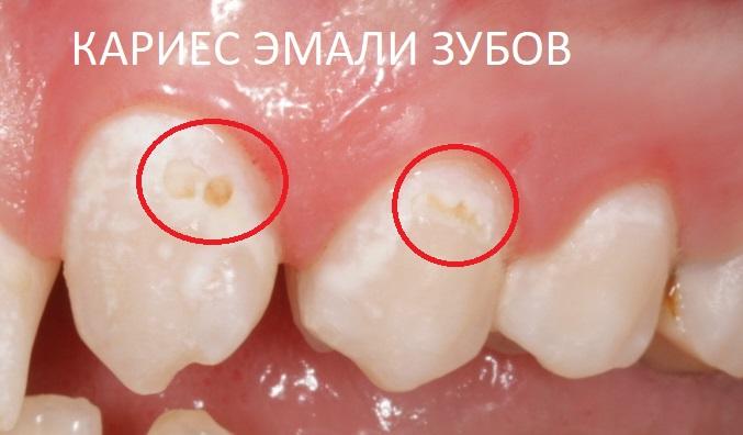 Вторая стадия кариеса - кариес эмали зубов