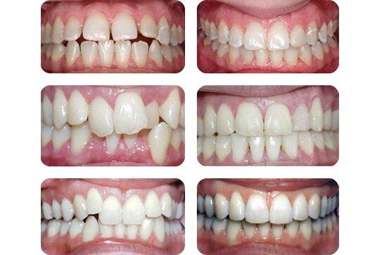 причины искривления зубов