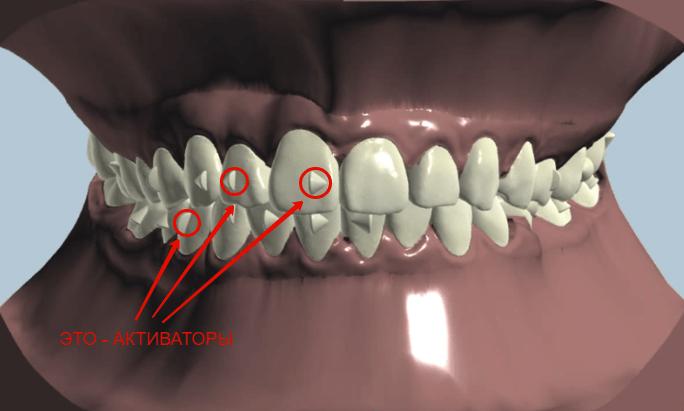 как ставятся виниры на передние зубы
