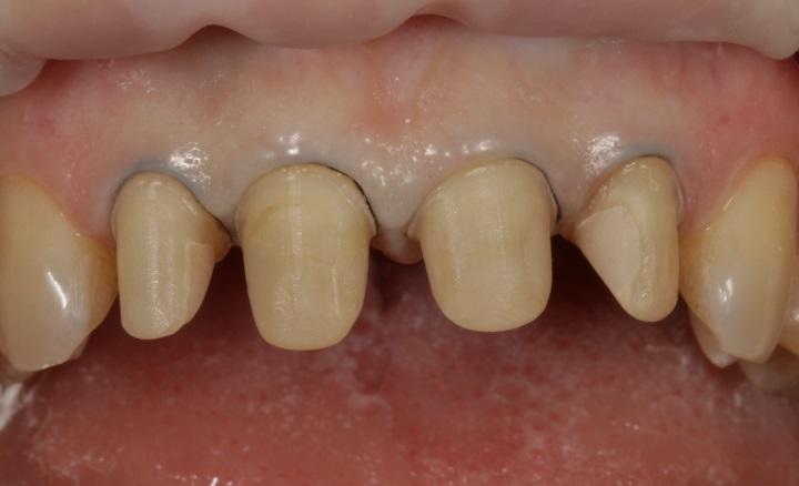 Минимально инвазивная обработка центральных резцов верхней челюсти с сохранением слоя эмали, необходимого для адгезивной фиксации керамических конструкций