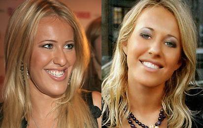 10 знаменитостей до и после реставрации зубов | 260x412