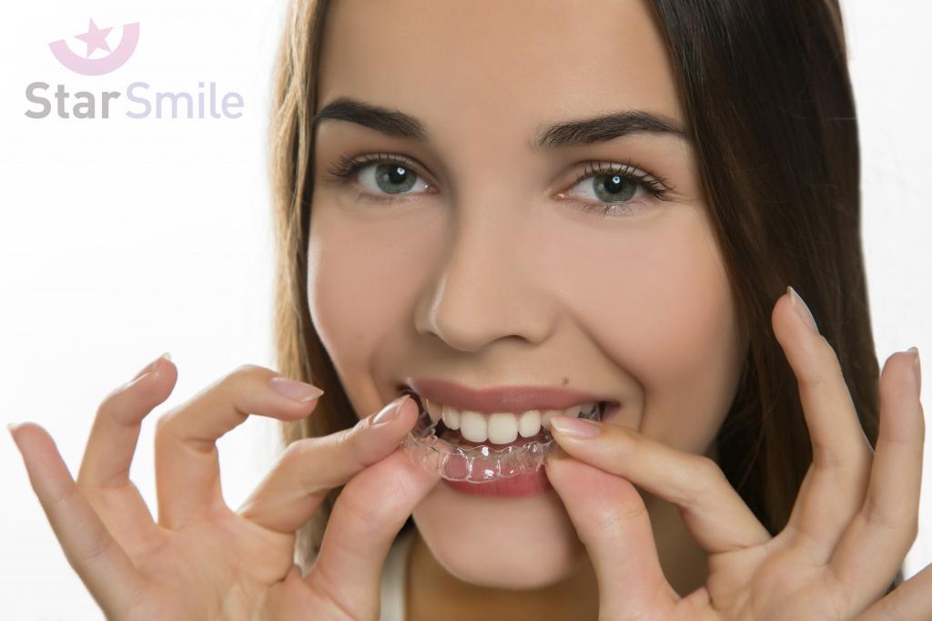 Выпрямление зубов без брекетов - элайнерами Star Smile является наиболее эстетичным и щадящим способом исправления прикуса