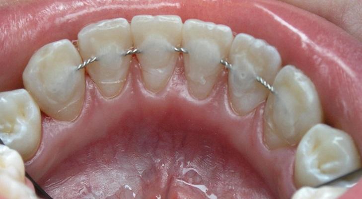 Несъемные ретейнеры в виде фиксирующей проволоки, которая крепится с внутренней стороны зубов. Один из вариантов крепления