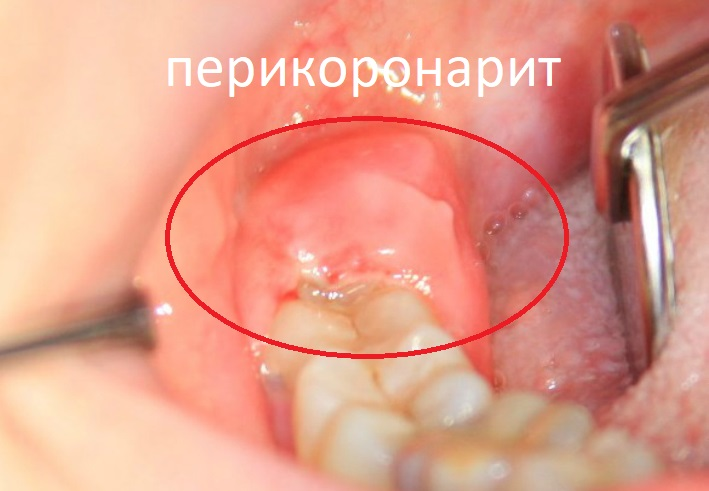 Надо ли лечить зуб мудрости