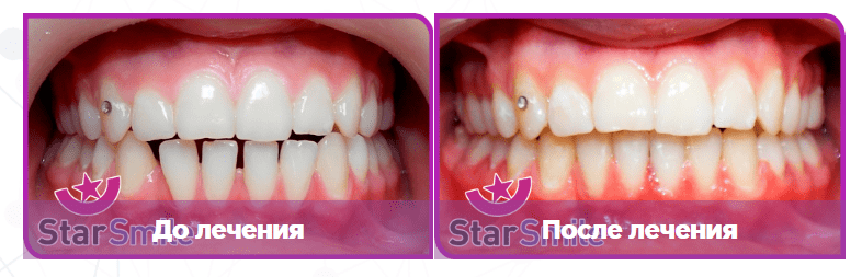 Выравнивание зубов элайнерами на примере промежутков на нижней челюсти