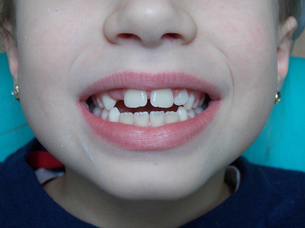 Открытый прикус у ребенка в 8 лет. Лечение открытого прикуса длится уже 1 год