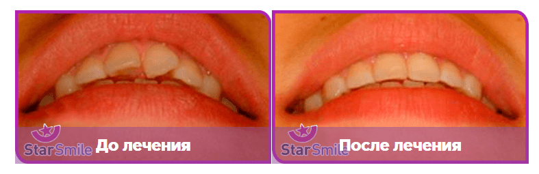 Выравнивание зубов элайнерами на примере поворота передних зубов. Обязательное последующее крепление внутреннего ретейнера