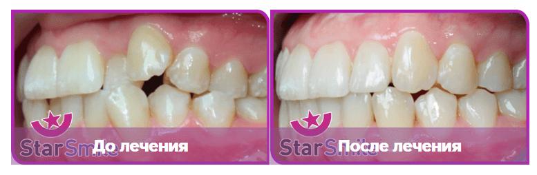 Выравнивание зубов элайнерами на примере обратно-резцового перекрытия