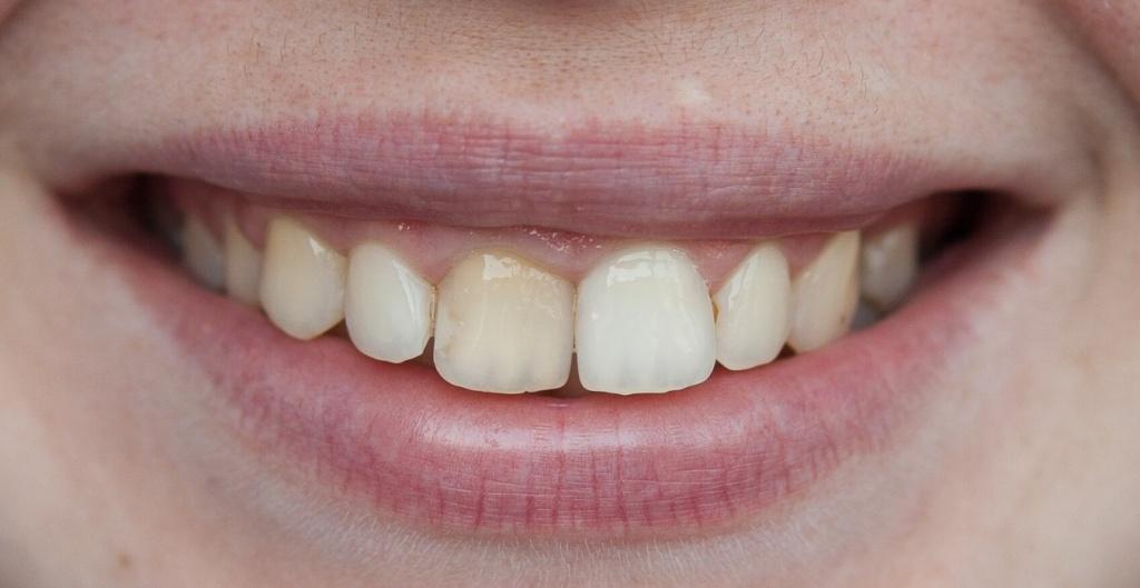 Если обратили внимание что зуб потемнел - то самое время обратиться к врачу эндодонтисту. Особенно если планируете исправлять прикус на элайнерах или брекетах.