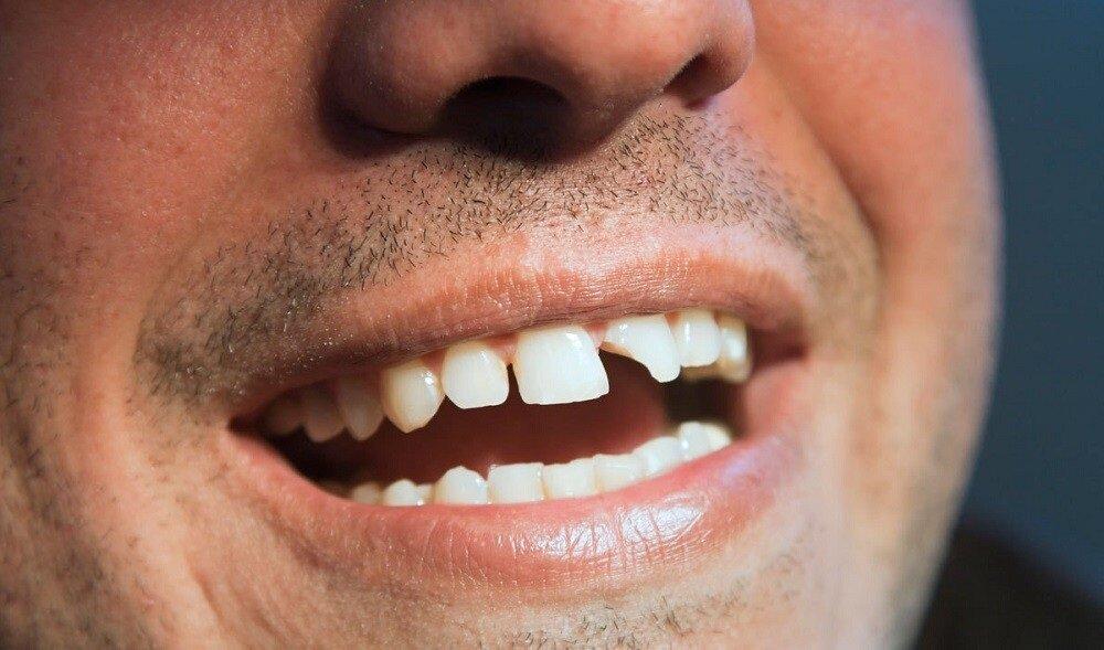 Выбитые зубы смешные картинки, днем