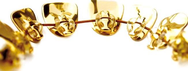 Лингвальные брекеты очень дорогие. Как будто сделаны из золота