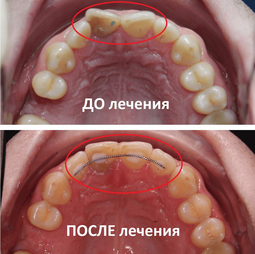 Установка ретейнера после исправления центральных резцов - обязательна