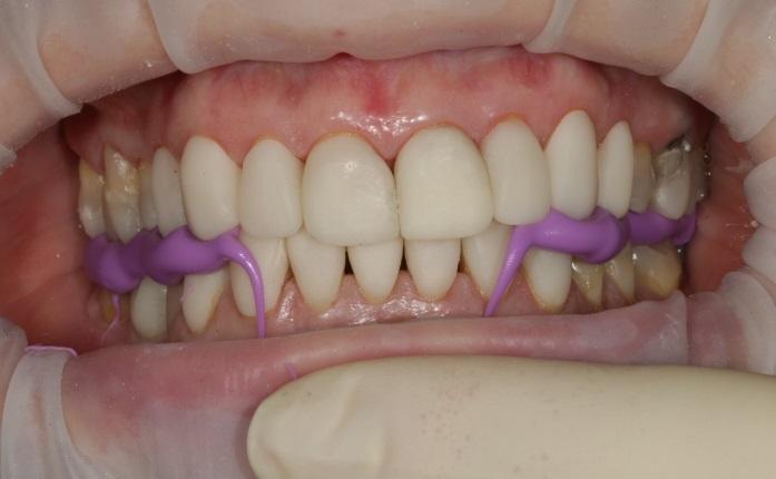 Изображение - Височно челюстной сустав cd98fdffb463fc2e4af84bdc295bbdc5