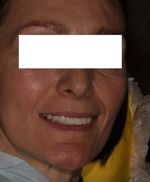 Изображение - Височно челюстной сустав d8dab841301e1106bb25edc53062ecbd