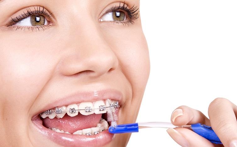 Зубные ершики при ношении брекетов