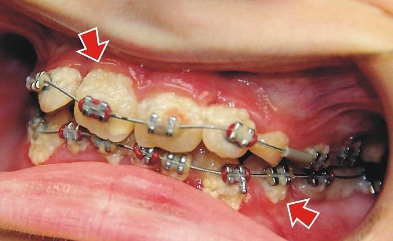 Поставили брекеты но зубы не болят что thumbnail