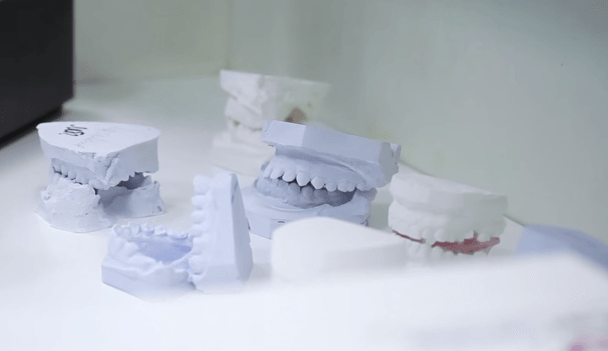 Оголились шейки зубов, зубы стали смещаться, возникать тремы - первые признаки надвигающегося парадонтита