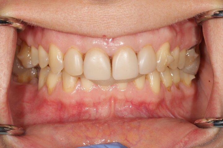 при сомкнутых зубных рядах, зубы верхней челюсти очень сильно перекрывают зубы нижней челюсти - глубокое перекрытие