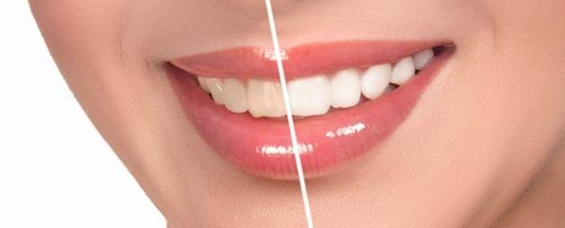 Если ухаживать за зубами правильно и неправильно