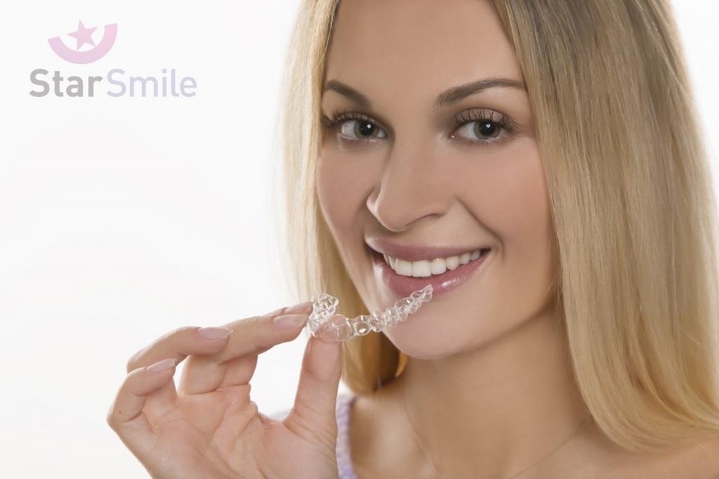 Элайнеры Star Smile - прекрасная альтернатива лечению на брекетах