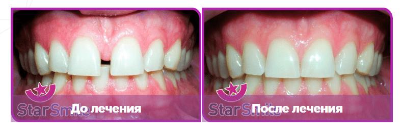 Выравнивание зубов элайнерами на примере диастемы